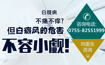 香港白癜风治疗